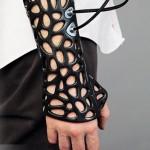戴上3D列印石膏不再活受罪
