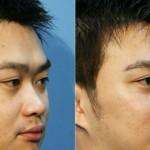 客製化鼻整形 讓你變身韓國帥氣歐巴