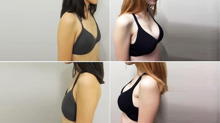 水滴型隆乳 讓瘦小女性也可達成D罩杯夢想