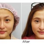 眼袋黑眼圈手術 你所不知的細節在哪裡?