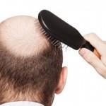 稀疏的頭髮怎麼辦? 靠這招解決您的問題