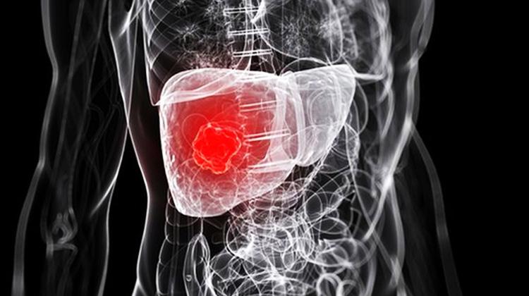 老翁罹肝癌壽命剩半年 標靶合併療法延命