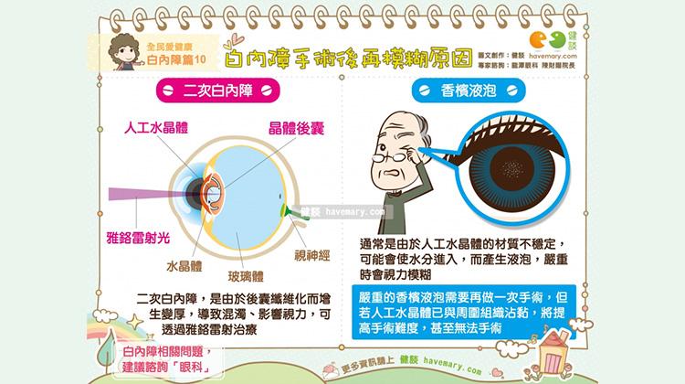 白內障術後視力再次模糊? 兩大原因要注意!|全民愛健康 白內障篇10