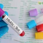 糖化血色素是糖尿病指標? 小心隱藏陷阱