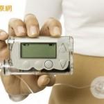 「人造胰臟」測試結果出爐了!