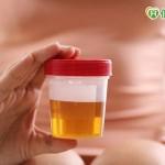 糖尿病併發腎病變 有指標可及早發現