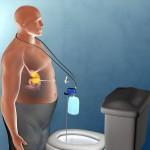 減重新療法! 抽出胃內食物有助減肥?