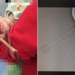 就愛邊玩邊吃?女童跌倒筷子插鼻孔無法取出送醫