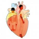 心跳太慢或太快,可能致命?