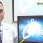 台灣肺癌死亡率居冠 免疫療法助存活