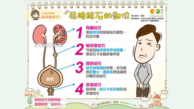 尿路結石的部位|全民愛健康 泌尿道結石3