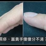 手乾裂發癢到底是濕疹還是富貴手?醫:看患部位置可分辨