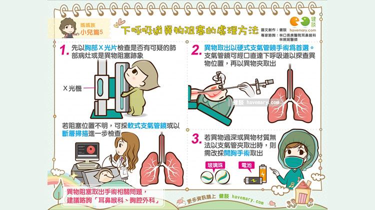 下呼吸道異物阻塞的處理方法|媽媽族 小兒篇5
