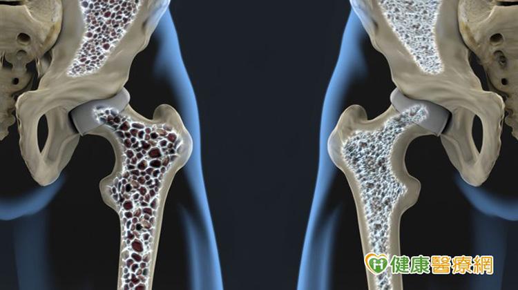X光驚見骨頭坑坑洞洞 攝護腺癌骨轉移這樣治療可保骨