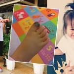 六月一歲女被水壺砸腳!腳姆指全黑痛到睡不著