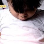 女童反覆胰臟炎 竟是囊狀纖維化罕病