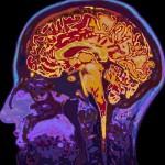 腹部脂肪與腦容量的關係