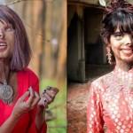 遭父潑酸毀容、職場歧視 印度女孩找回自我:美不在於外貌,而是心中的光