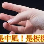 手指伸不直怎麼辦? 原來是板機指!