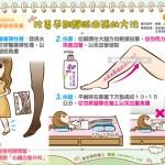 孕期改善靜脈曲張的方法