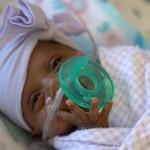 蘋果姑娘,世界上最小的嬰兒是如何活下來的?