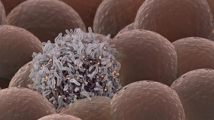 科學家研發出可消滅癌細胞的雷射了?!