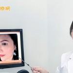 線性提拉打造高挺美鼻 五官更立體!  健康醫療網/記者林怡亭報導