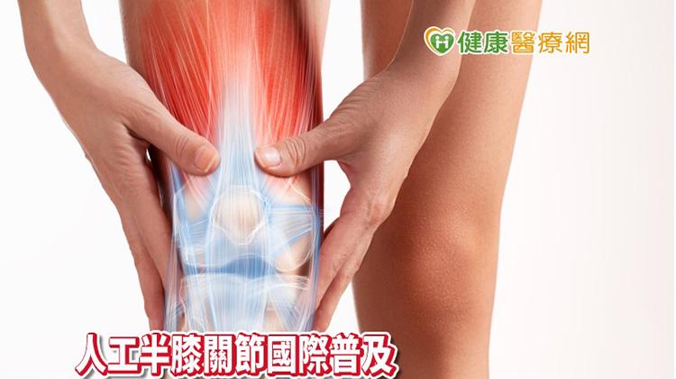 膝蓋痛吃藥、打針都無效  置換人工半膝關節「彎更多」