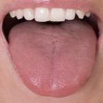 肥大的舌頭會在你睡著時堵住氣道