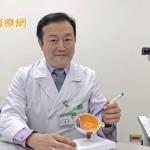 視物扭曲變形!及早治療、選對療法 糖尿病黃斑部水腫免驚