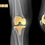 微創膝關節術後不再怕痛! 搭配雞尾酒止痛療法