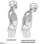 不可忽視的腰酸背痛- 僵直性脊椎炎