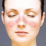 全身性紅斑狼瘡- 診斷標準與保養之道