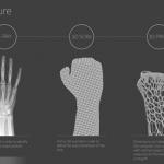 北醫設40床臨床導入3D列印醫療