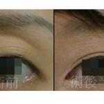 眼窩凹陷飄滄桑 自體脂肪注射填補變活力電眼