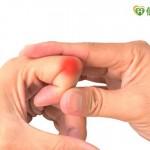 類風濕性關節炎把握黃金治療期 以免變形不可逆