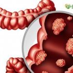 每天15人死於腸癌 篩檢可降5成死亡風險
