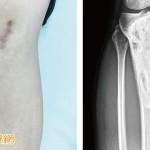 腳踝腫痛莫輕忽 恐因罕見骨腫瘤惹禍