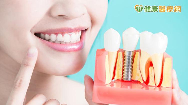 植牙+全瓷冠 打造你成為人生勝利組