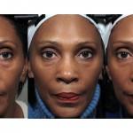 臉部運動讓你看起來更年輕