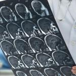搶救腦中風 黃金時間打通血管少失能