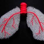 關於肺癌,你最想知道的5件事