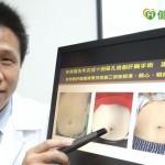 單孔微創肝臟手術 恢復更快風險低