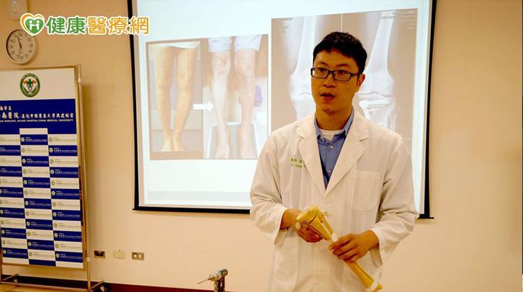 膝關節退化成O形腿 這樣治療成功緩解疼痛