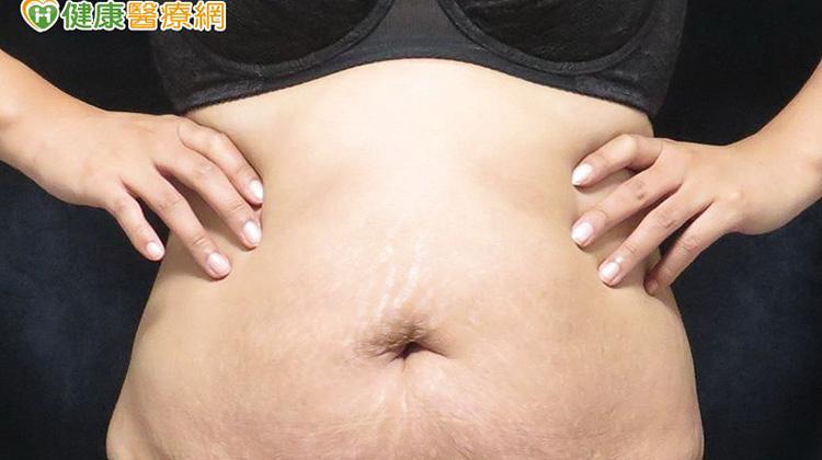 產後腹部鬆弛「皺」煩ㄟ! 緊實小腹拉皮竟靠這招