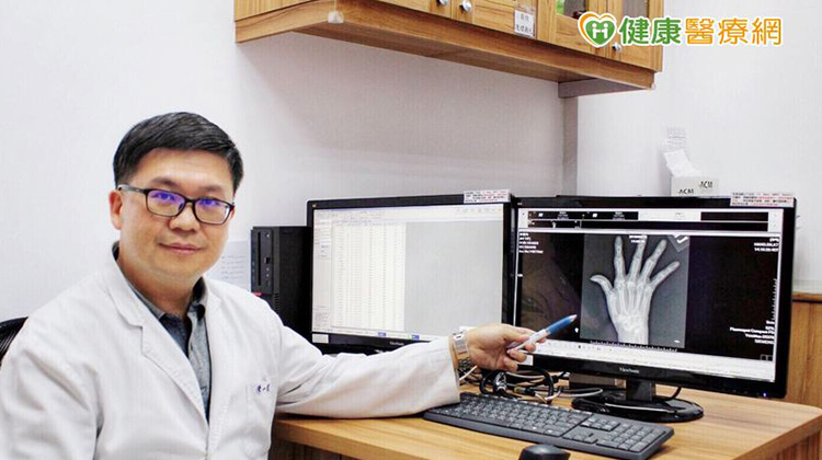 手指關節疼痛別輕忽 小心類風濕性關節炎上身XOZ
