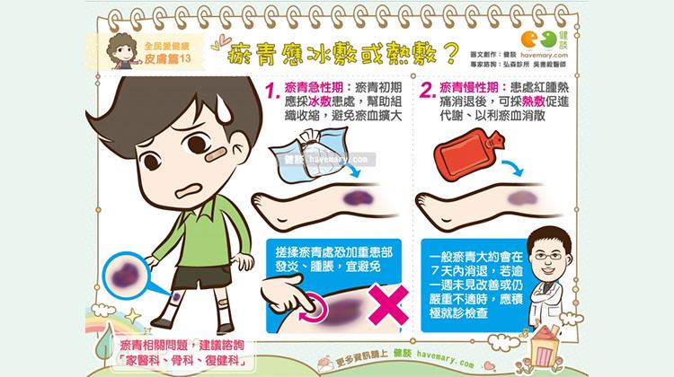 瘀青應冰敷或熱敷?|全民愛健康 皮膚篇13