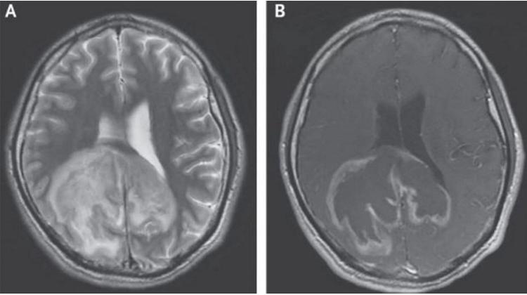 人體內潛伏的寄生蟲在大腦中覺醒