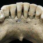 中世紀歐洲婦女的牙齒中發現了青金石