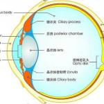 手術是如何拯救近視眼的?